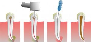 Endodontsko zdravljenje zoba