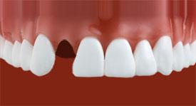 Izbit zob