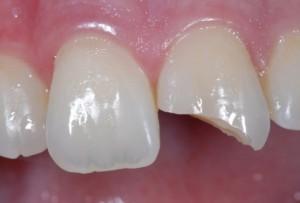Odlom zoba